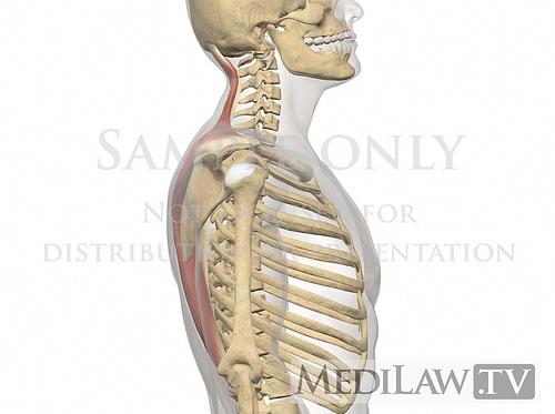 Die Ursache von Rückenschmerzen und wie man sie schnell wieder loswird – Behandle Deinen Rücken selbst